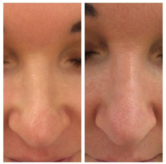 Ринопластика носа филлерами - иньекционная ринопластика уколами | ринопластика носа