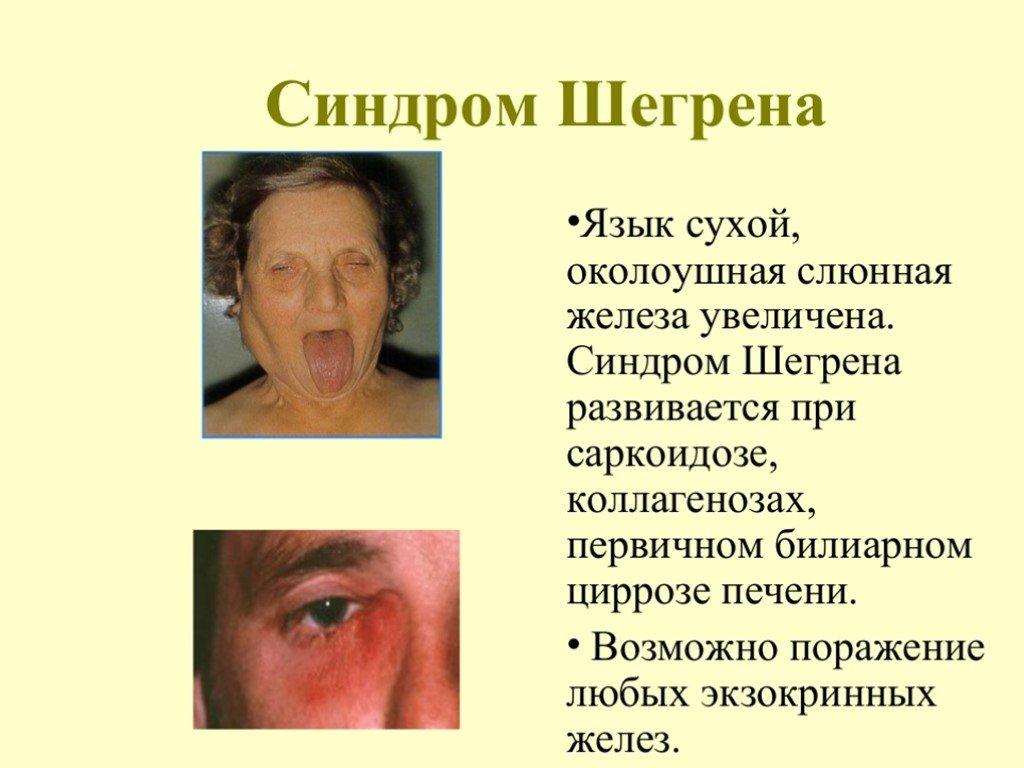 Болезнь и синдром шегрена: симптомы и лечение