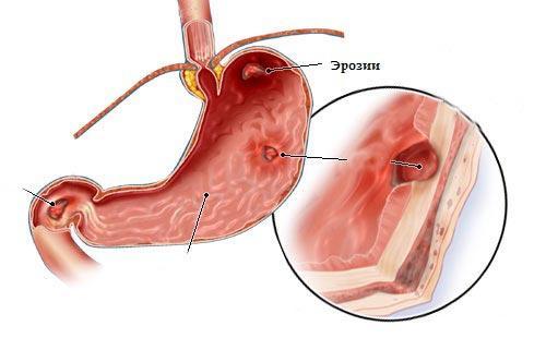Эритематозная гастродуоденопатия: что это такое, симптомы, лечение, диета при диагнозе, а также разница между очаговой и дифузной, 1 и 2 степенью воспаления
