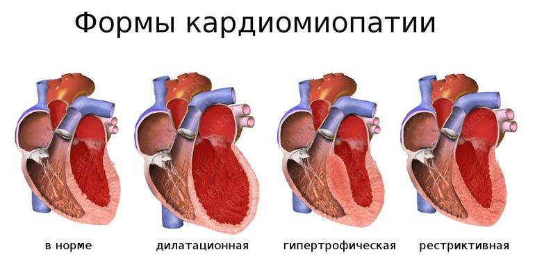 Дилатационная кардиомиопатия: причины, симптомы, диагностика, лечение   компетентно о здоровье на ilive
