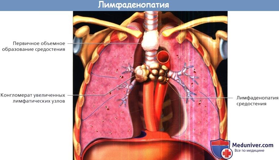 Лимфаденопатия: что это такое, лечение и причины