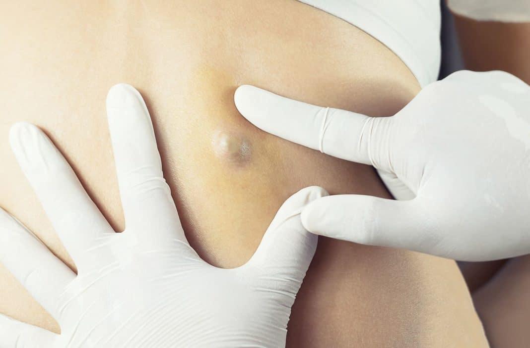 Атерома: как выглядит и почему появляется киста сальной железы, способы лечения