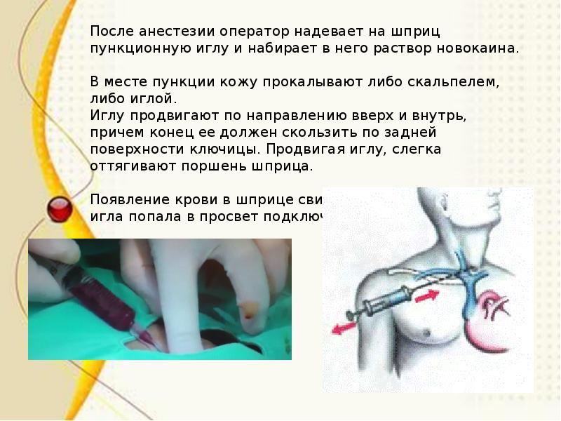 Виды мочевых катетеров и особенности их применения