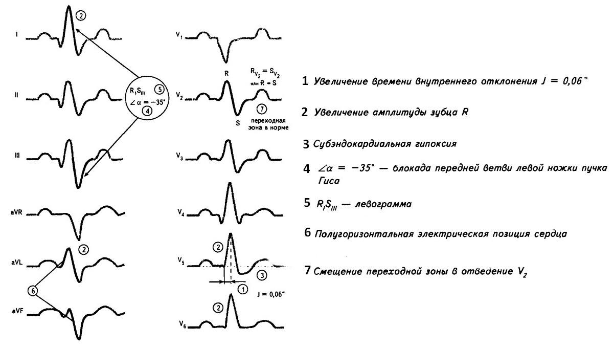 Расшифровка экг: как правильно расшифровать кардиограмму | университетская клиника