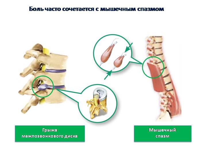 Мышечно-тонический синдром