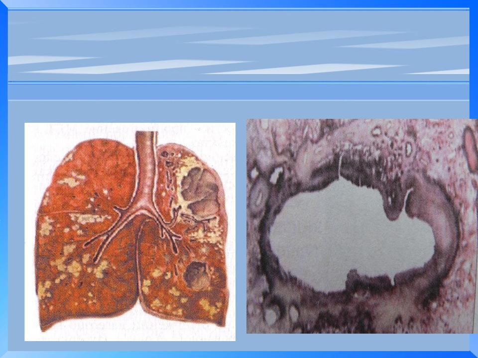 Метатуберкулезные изменения в легких — что это такое? лечение