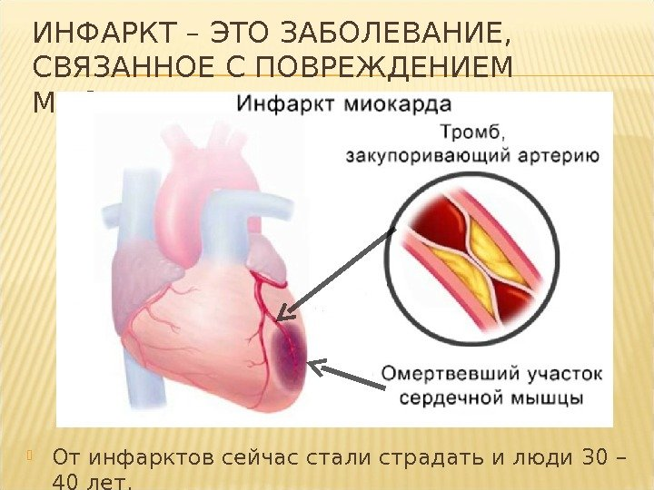 Инфаркт — виды, признаки инфаркта у женщин и мужчин, питание, первая помощь больному