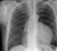 Тимома - симптомы, стадии, причины, лечение и удаление тимомы