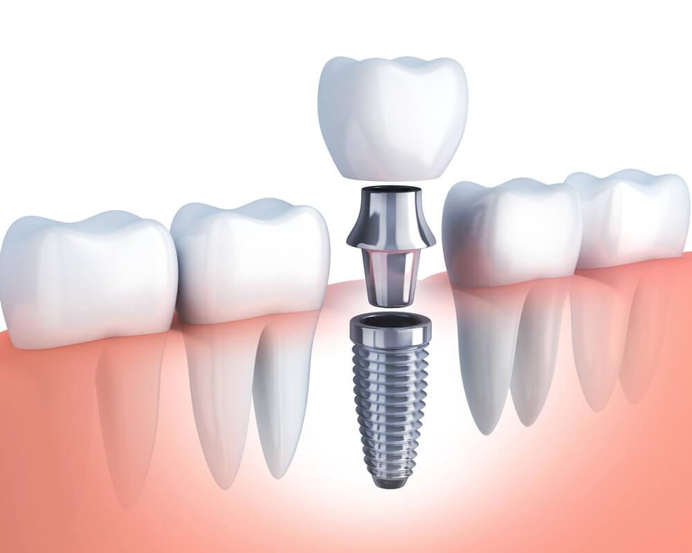 Что такое абатмент и для чего он нужен? виды и процесс установки основы под зубной протез