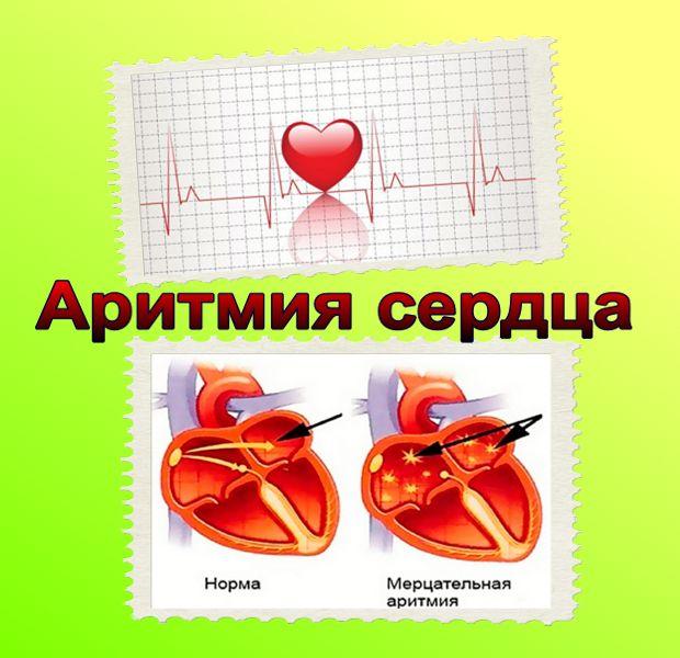 Можно ли вылечить аритмию сердца | лечение сердца