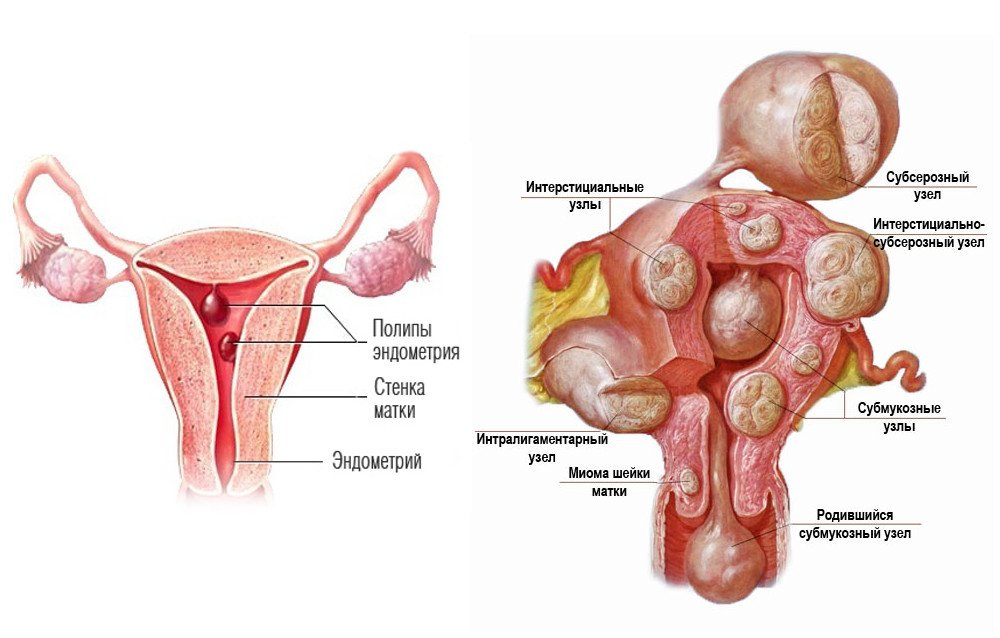 Субсерозная миома матки: всегда ли нужна операция