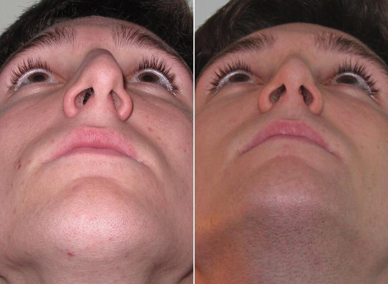 Операция по исправлению носовой перегородки (септопластика) – виды и лечение
