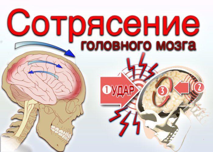 Сотрясение мозга симптомы лечение в домашних условиях