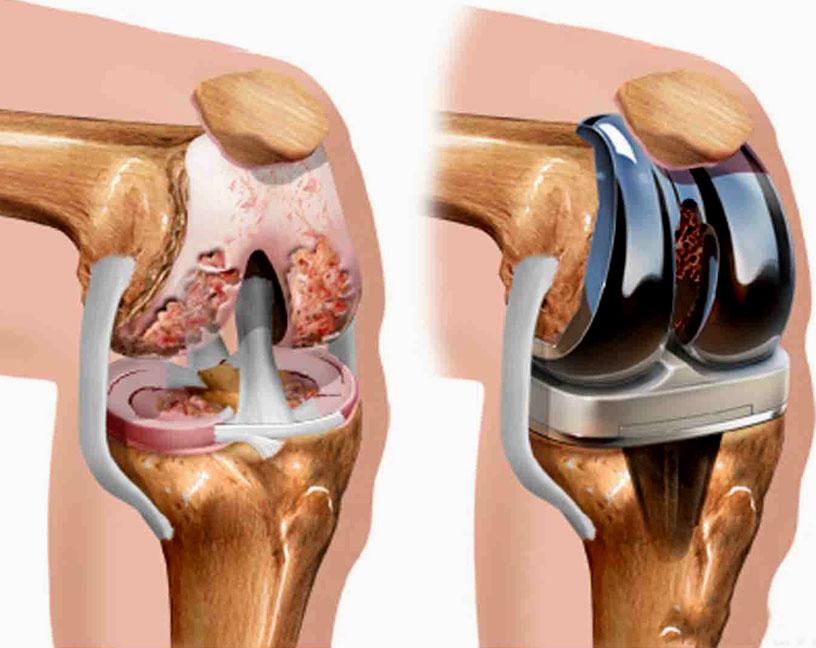 Что такое остеоартрит и чем он опасен