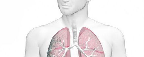 Причины появления кисты шишковидной железы, методы диагностики и лечения
