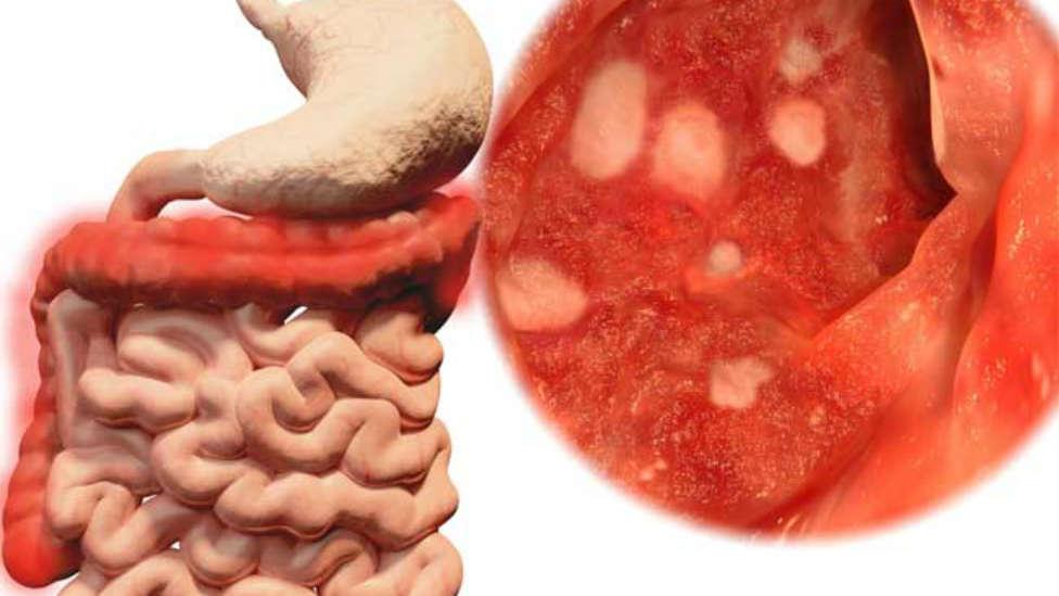 Симптомы колита кишечника  — лечение у взрослых и детей народными средствами, отзывы