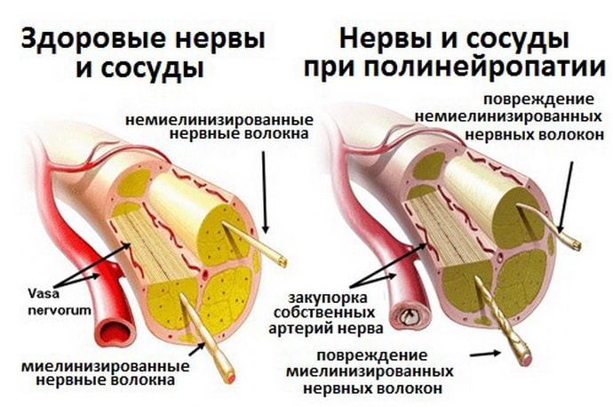 Диабетическая полинейропатия: что это, классификация, признаки, лечение и профилактика заболевания.