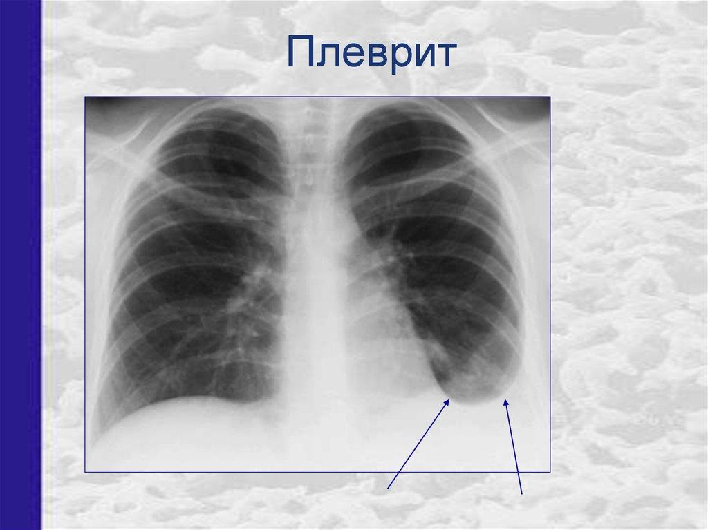 Симптомы и лечение плеврита легких