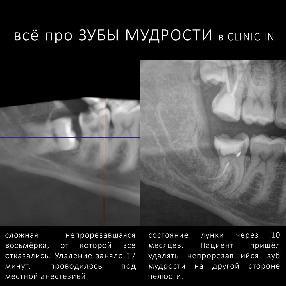 Ретинированные и дистопированные зубы: показания к удалению и особенности ухода   za-rozhdenie.ru