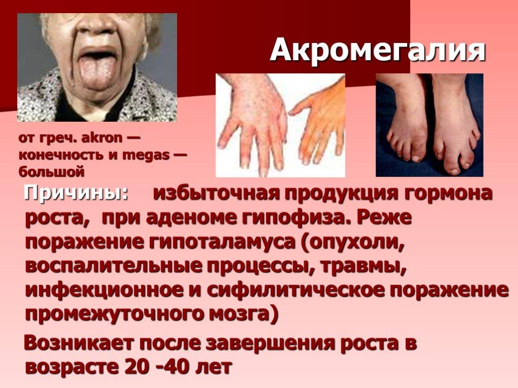 Акромегалия и гигантизм. причины, симптомы, диагностика и лечение :: polismed.com