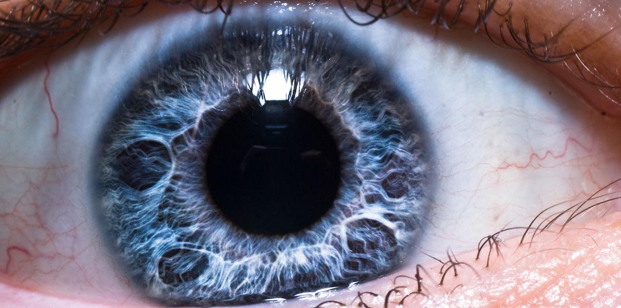 Эрозия роговицы глаза: лечение, причины, симптомы, диагностика и осложнения