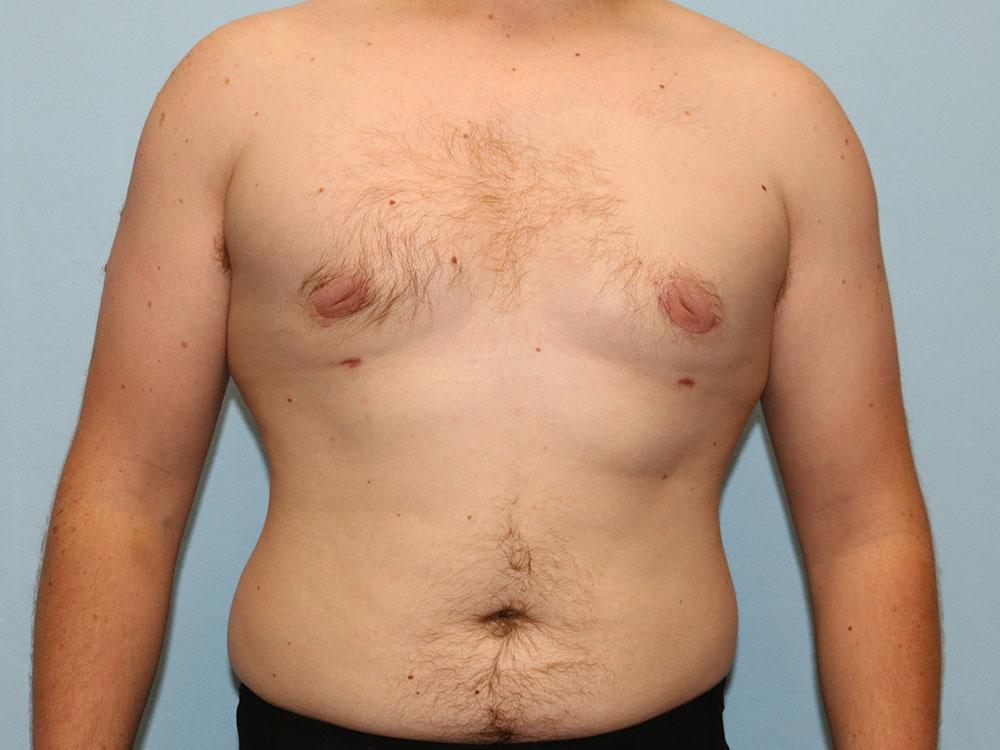 Гинекомастия у мужчин: причины, виды, симптомы, лечение   parnas42.ru