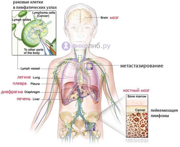Лечение неходжкинской лимфомы, совет онколога и методы