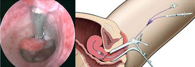 Что такое гистероскопия в гинекологии: как она проводится