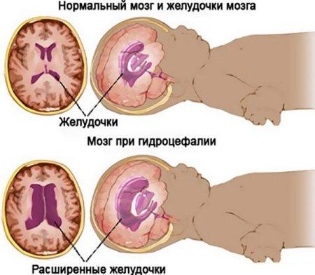 Кровоизлияние в желудочки головного мозга: причины, симптомы, диагностика и лечение