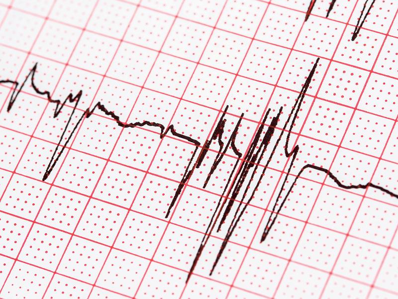 Признаки мерцательной аритмии | лечение сердца