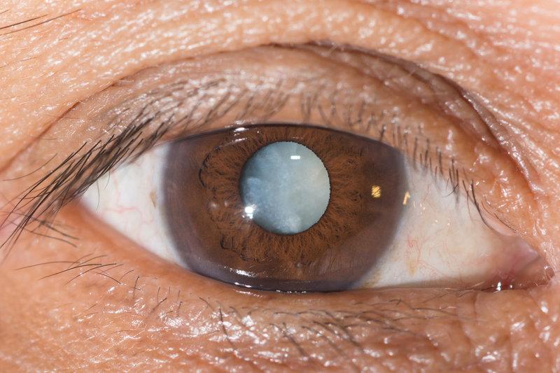 Старческая катаракта: что это такое, почему развивается заболевание у возрастных пациентов, стадии течения сенильной формы