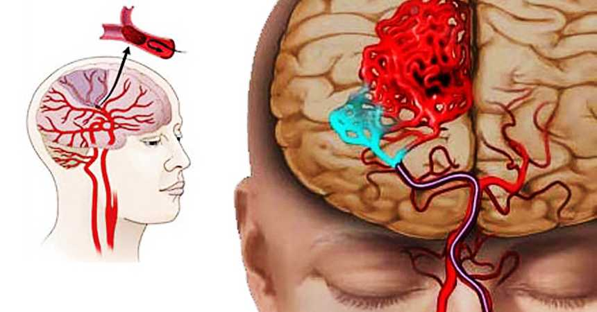 Апоплексический удар: 5 первых признаков инсульта