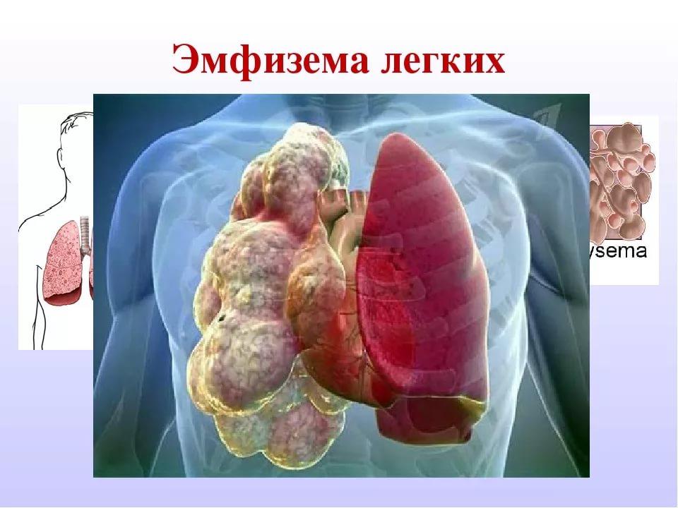 Буллезная болезнь (эмфизема) легких: понятие, признаки, диагностика и лечение