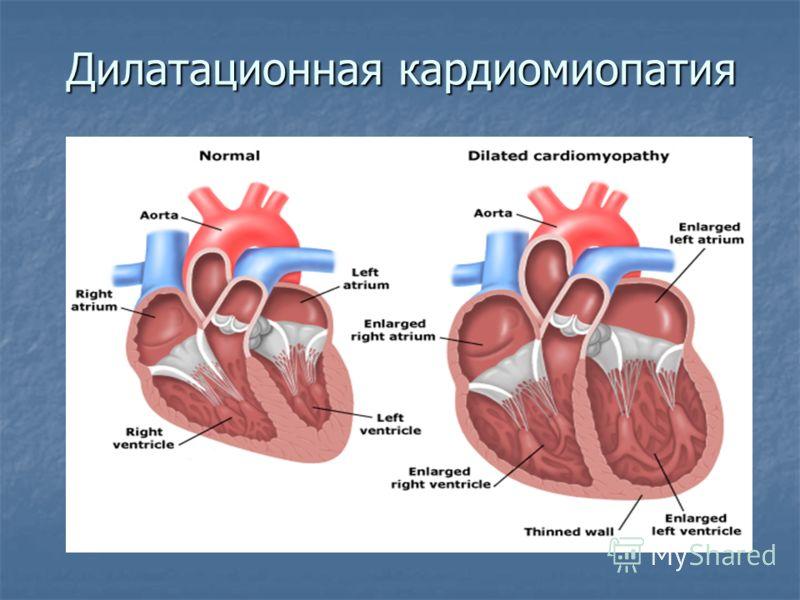 Дилатационная кардиомиопатия: что это такое, симптомы и лечение