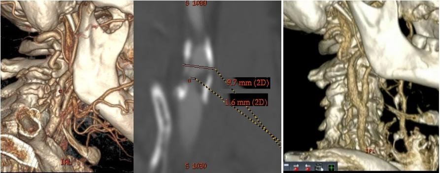 Аневризма сосудов головного мозга — «бомба» замедленного действия?
