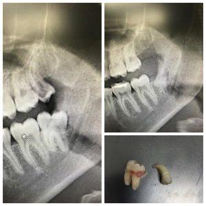 Удаление ретинированного зуба что это такое — зубы