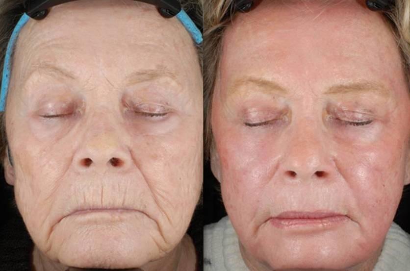 Лазерное омоложение лица как способ восстановления кожи (обзор метода)