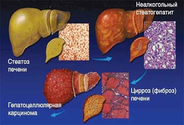 Фиброз печени 1, 2, 3, 4 степени: сколько живут, лечение