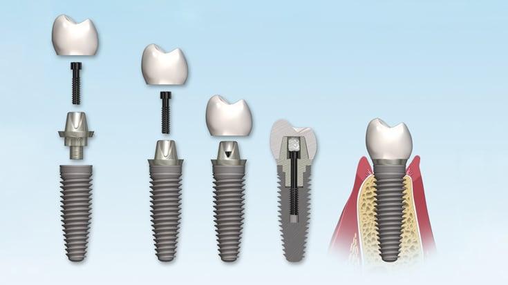 Абатменты для имплантов - стоимость, виды и установка