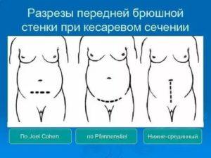Элективное кесарево сечение: что такое кесарево по желанию, всегда ли можно его сделать, стоит ли выбирать кесарево
