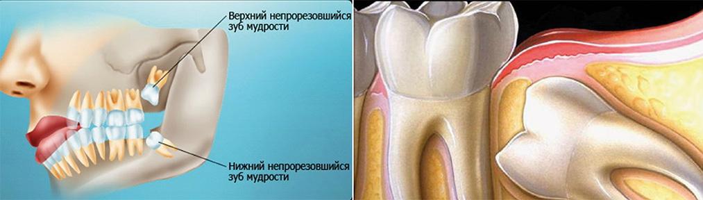 Зубы мудрости: фото, правила ухода, когда их нужно удалять