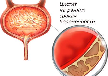 Цистит у женщин: симптомы, причины возникновения, лечение препаратами, таблетками