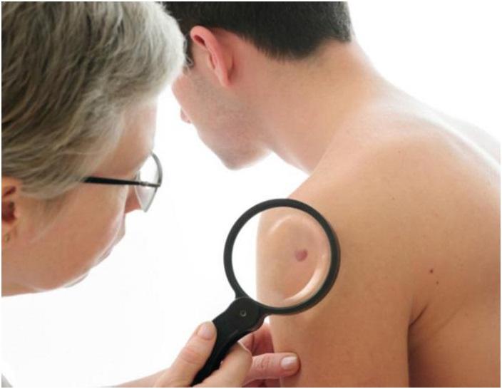 Саркома капоши: что это, симптомы и первые признаки, причины возникновения, лечение и прогноз