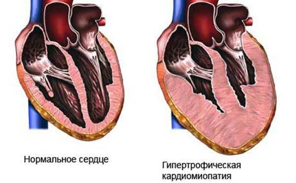Алкогольная кардиомиопатия - что это такое, симптомы