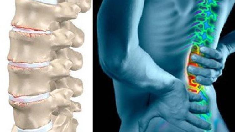 Дорсопатия пояснично крестцового отдела позвоночника: симптомы, рекомендации при лечении