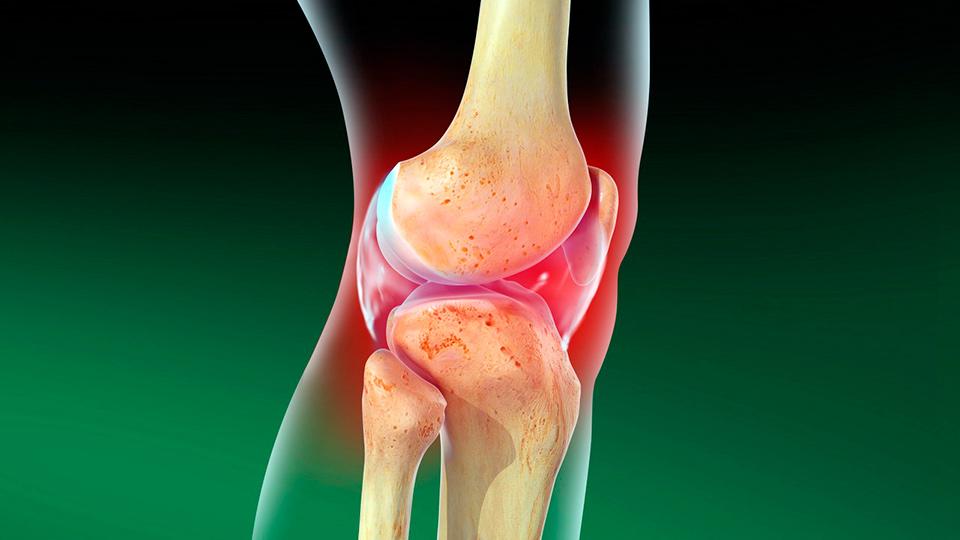 Остеоартроз суставов: симптомы, лечение и степени заболевания
