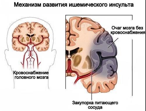 Характеристика заболевания обширный инсульт и его последствия