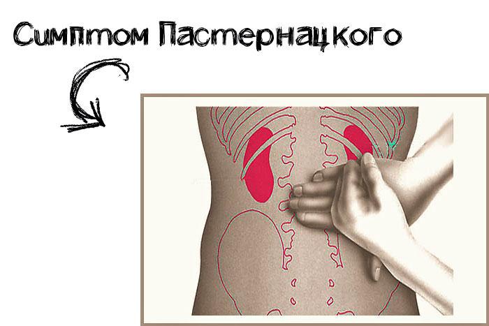 Симптом пастернацкого — что это такое, диагностика и лечение | все о здоровье почек