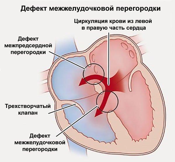 Врожденный порок сердца у детей: причины, симптомы, виды и последствия