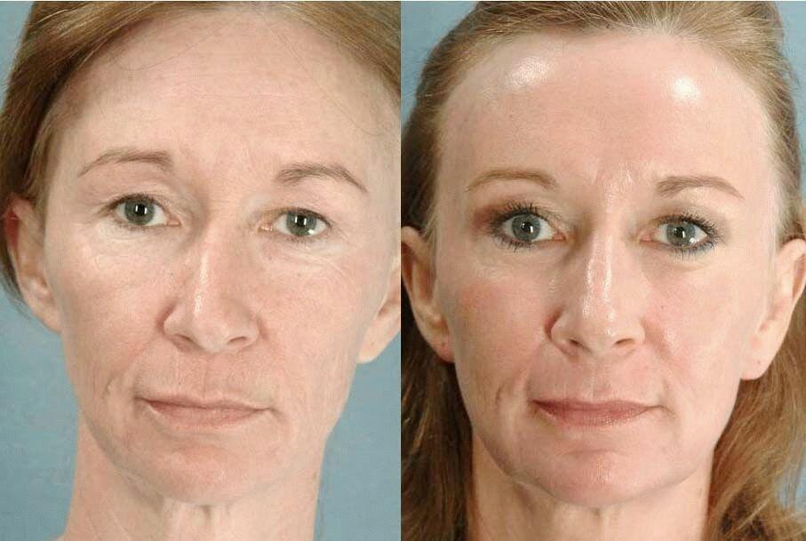 Фракционное лазерное омоложение кожи лица: что это, отзывы, фото до и после | poudre.ru